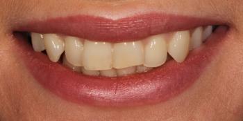 Улучшить улыбку и откорректировать эстетический недостатки верхних резцов фото до лечения
