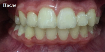 Раскрытие места для прорезывания клыков на верхней челюсти фото после лечения