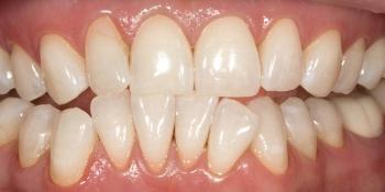 Отбеливания зубов по безопасной технологии SmartLight 3LT фото после лечения