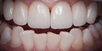 Протезирование передних зубов керамическими винирами Емах фото после лечения