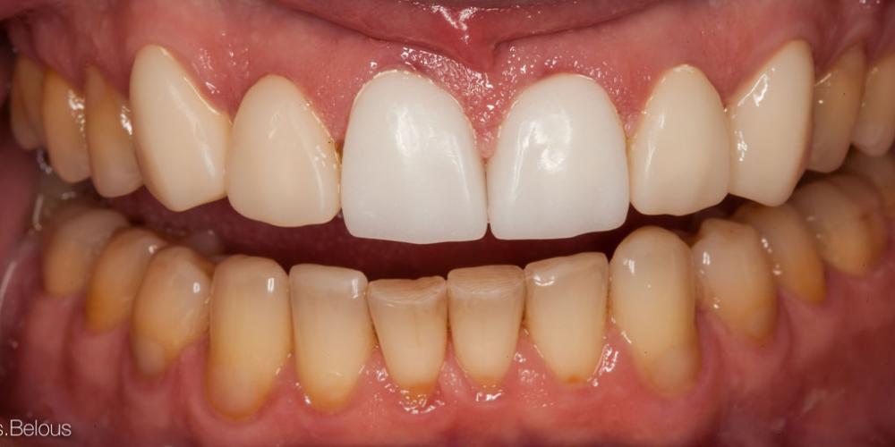 Временные пластмассовые коронки, изготовленные на CEREC. Полное воссоздание верхнего зубного ряда