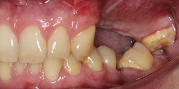 Отсутствие зубов в течение длительного времени, затрудненное пережевывание пищи, эстетический дефект фото до лечения