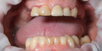 Частично съемный протез на верхнюю и нижнюю челюсть фото до лечения