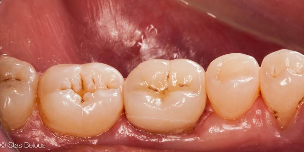 Готовая работа Восстановление зуба цельнокерамической коронкой смоделированной в 3D