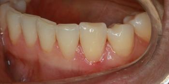 Лечение кариеса в зоне линии улыбки фото после лечения