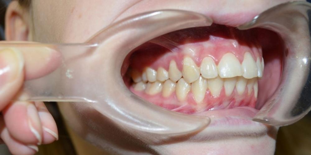 После лечения. Результат выравнивания зубов на нижней и верхней челюстях