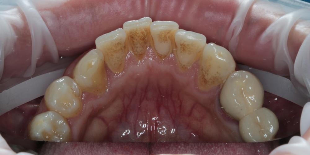 Оценив ситуацию, врач выполнил профессиональную гигиену полости рта, состоявшую из нескольких этапов: Профессиональна гигиена полости рта + чистка Air-Flow