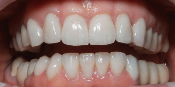 Установка керамических виниров на зубы, пациентке 54 года фото после лечения
