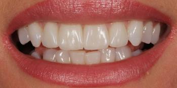 Улучшить улыбку и откорректировать эстетический недостатки верхних резцов фото после лечения