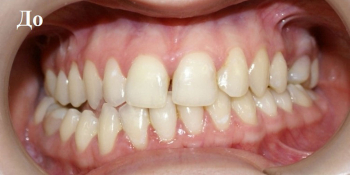 Исправление положения челюстей и неправильного положения зубов фото до лечения