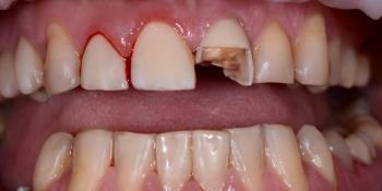 Срочный ремонт зуба, скол реставрации фото до лечения