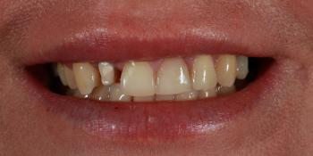Протезирование зубов керамическими винирами и керамической коронкой на имплантате фото до лечения