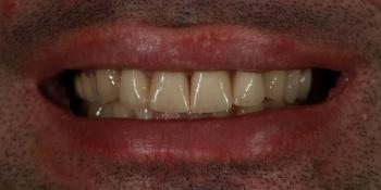 Исправление неровности зубного ряда и дисколорита при помощи 4-х керамических виниров фото после лечения