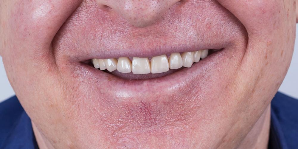 Готовый результат. Полное воссоздание верхнего зубного ряда