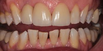 Эстетическая реабилитация зоны улыбки керамическими винирами, имплантация фото после лечения