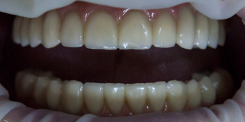Тотальное протезирование при полном отсутствии зубов фото после лечения