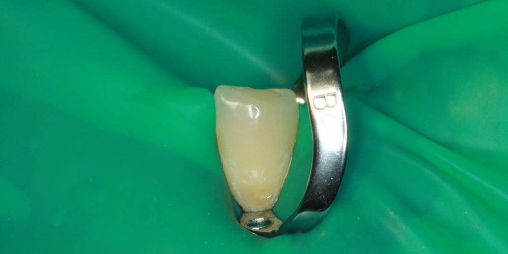 По просьбе пациентки лечение зубов провели в два посещение. В первый прием были  сделаны зубы №34 и №32, во второй прием 33 .На приеме  была проведена анестезия, убраны кариозные  ткани, удалены пораженные кариесом ткани зуба, подготовленная полость обработана 0,2% р-ром хлоргексидина, зуб восстановлен композитным материалом светового отверждения. Лечение кариеса в зоне линии улыбки
