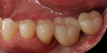 Цельнокерамические реставрации на зубах и имплантатах с опорой на индивидуальные абатменты фото после лечения