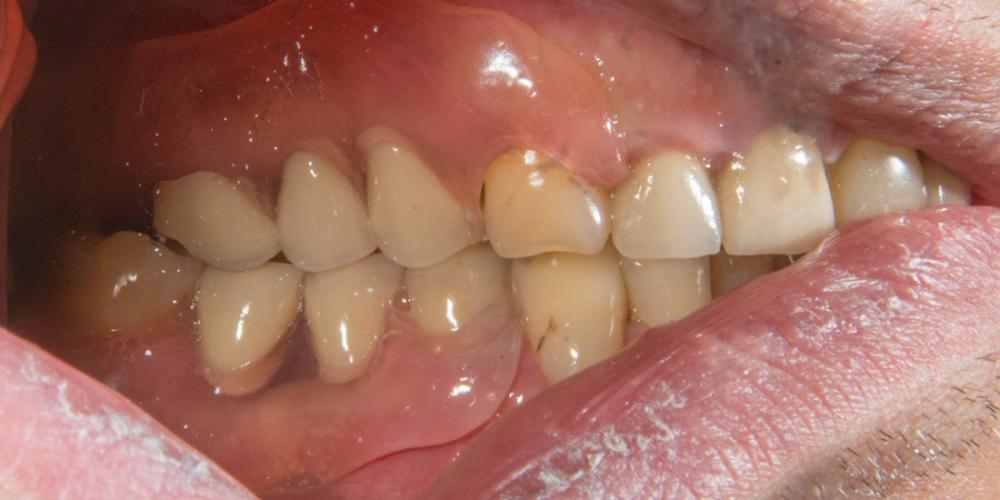 Вид справа после протезирования. Частично съемный протез на верхнюю и нижнюю челюсть