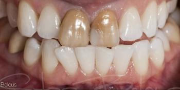 Временные реставрации по форме своих собственных зубов фото до лечения