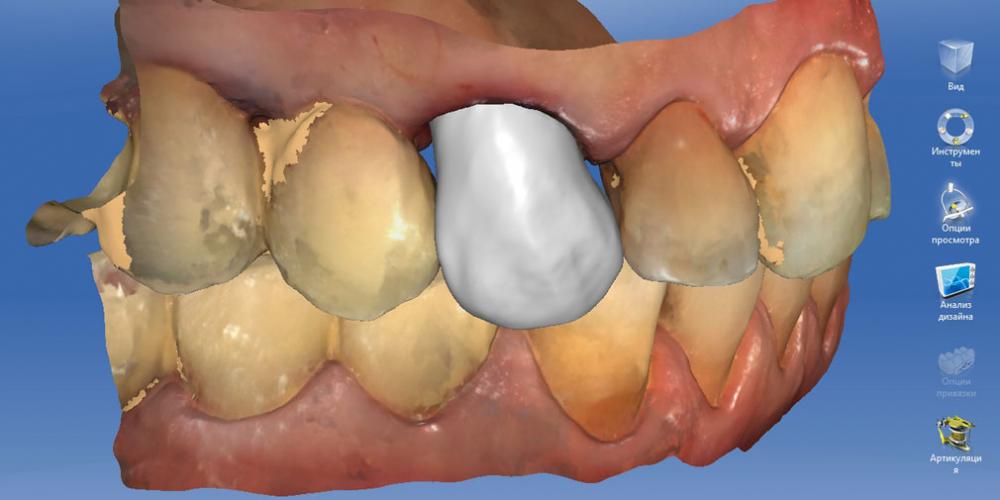 Восстановление утраченных тканей зуба коронкой Cerec