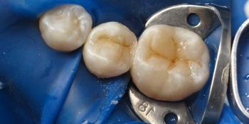 Реставрация двух зубов верхней челюсти фото после лечения