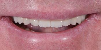 Полное восстановление двух челюстей на 16 имплантатах фото после лечения