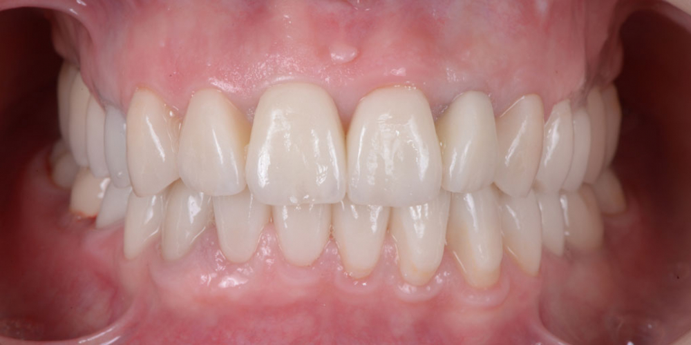 Готовая работа (цельнокерамические реставрации на зубах и имплантатах с опорой на индивидуальные циркониевые абатменты) в полости рта. 5 имплантатов, 28 керамических реставраций, наращивание костной ткани, пластика десны