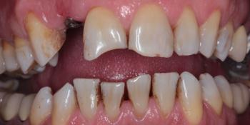 Эстетическая реабилитация зоны улыбки керамическими винирами, имплантация фото до лечения