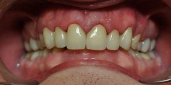Замена множественных реставраций на зубах фронтальной группы на частичные коронки E-max фото после лечения