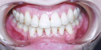 Результат исправления прикуса саморегулирующимися брекетами Даймон Ку фото после лечения