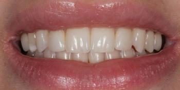 Исправление боковых резцов верхней челюсти керамическими винирами фото после лечения