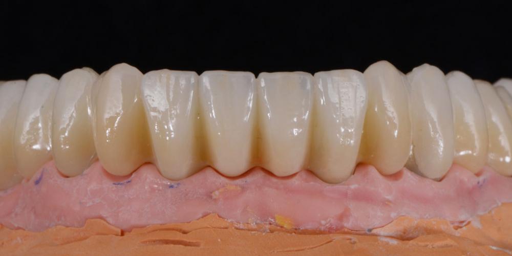 Постоянные цельнокерамические реставрации с опорой на индивидуальные абатменты из диоксида циркония на на модели -нижняя челюсть. Полное восстановление двух челюстей на 16 имплантатах