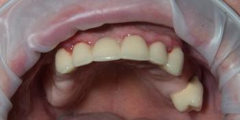 Бюгельный протез на верхнюю челюсть фото до лечения
