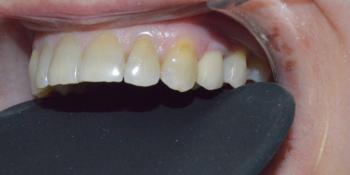 Удаление зуба с одномоментной имплантацией Астра Тек фото после лечения