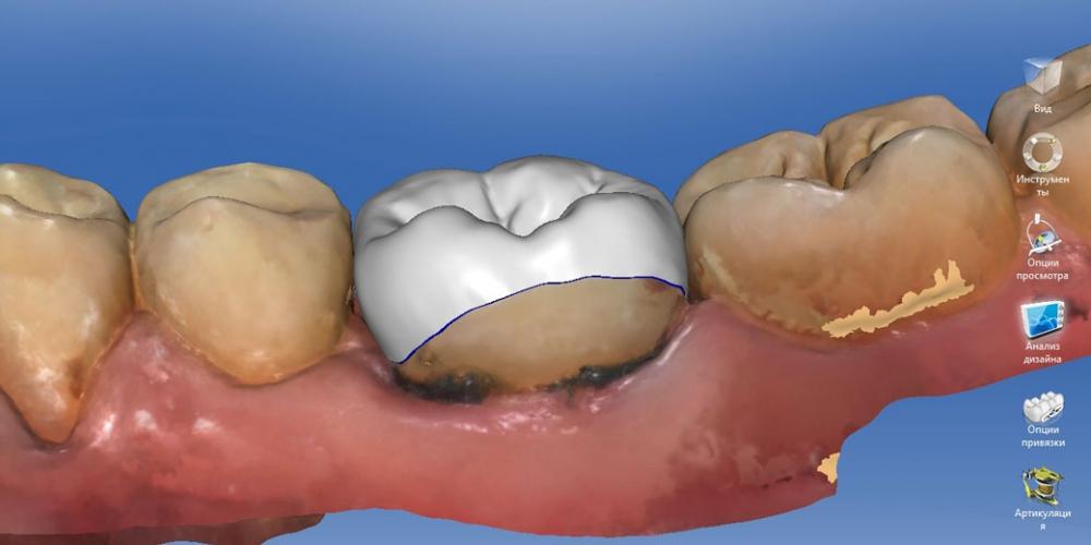 Процесс моделирования коронки с использованием профессиональных програм Восстановление зуба цельнокерамической коронкой смоделированной в 3D