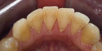 Профессиональная гигиена зубов под микроскопом фото до лечения