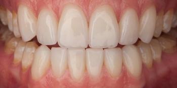 Супертонкие керамические виниры на передние зубы фото после лечения