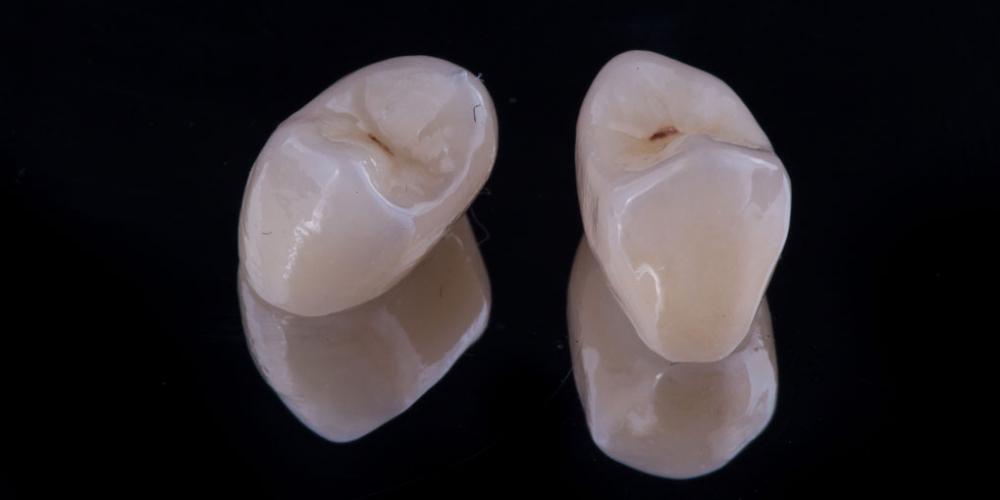 Коронка по технологии CEREC из литий силикатной керамики E.max с индивидуализацией
