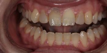 Виниры для придания эстетики передним зубам фото до лечения