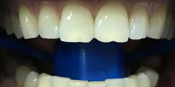 Отбеливание зубов системой ZOOM 3 фото до лечения