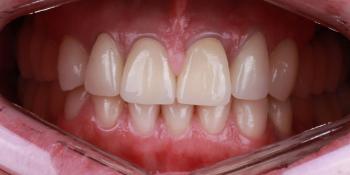 Протезирование при помощи коронок из диоксида циркония керамических виниров и дентальных имплантатов фото после лечения