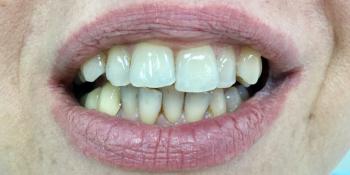 Комплексная реабилитация улыбки коронками на основе диоксида циркония и керамическими винирами фото до лечения