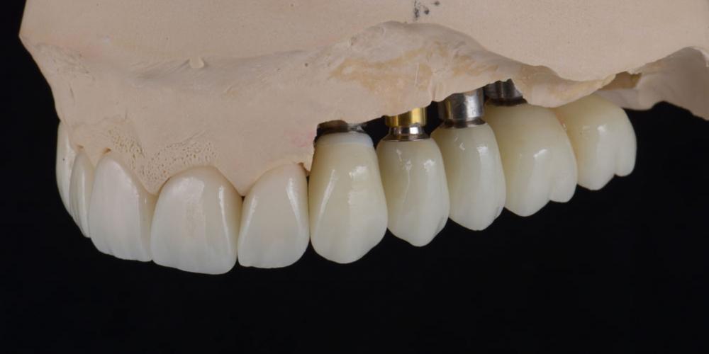 цельнокерамические реставрации на зубы (виниры, коронки) и импантаты на индивидуальных абатментах из диоксида циркония на модели 2 Тотальная стоматологическая реабилитация пациента с использованием 13-ти имплантов и 28 виниров