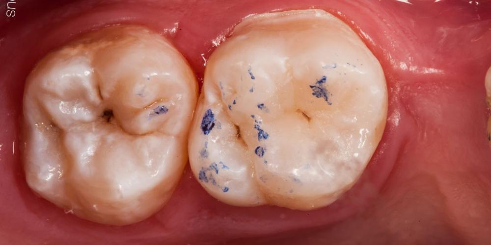 Проверка Результат лечения кариеса, реставрация жевательного зуба