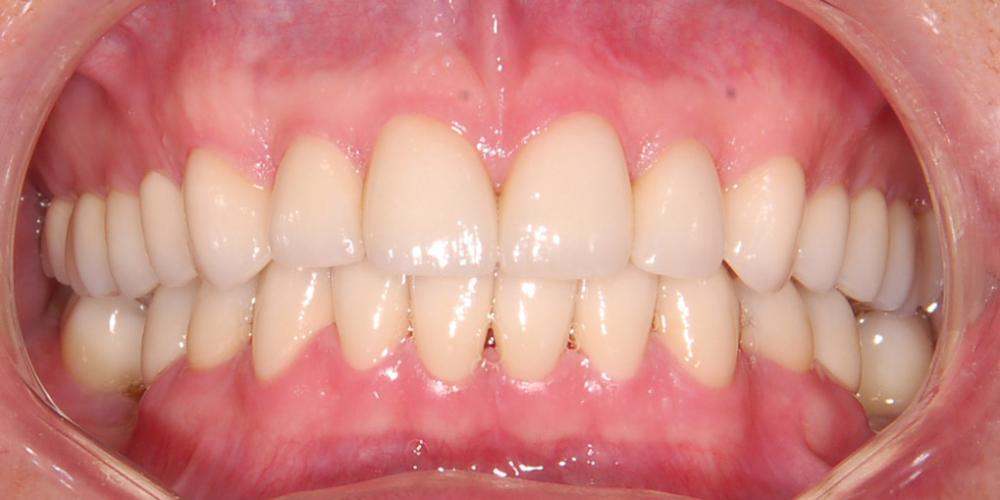 Этап примерки будущей реставрации. Контроль смыкания зубов, цвета. Восстановление зоны улыбки винирами empress e-max